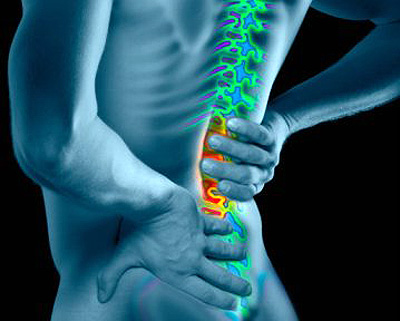Bulging Disc and Lower Back Pain