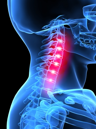 Neck pain Adelaide