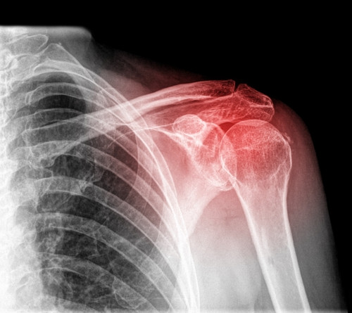 Shoulder Pain - X-Ray